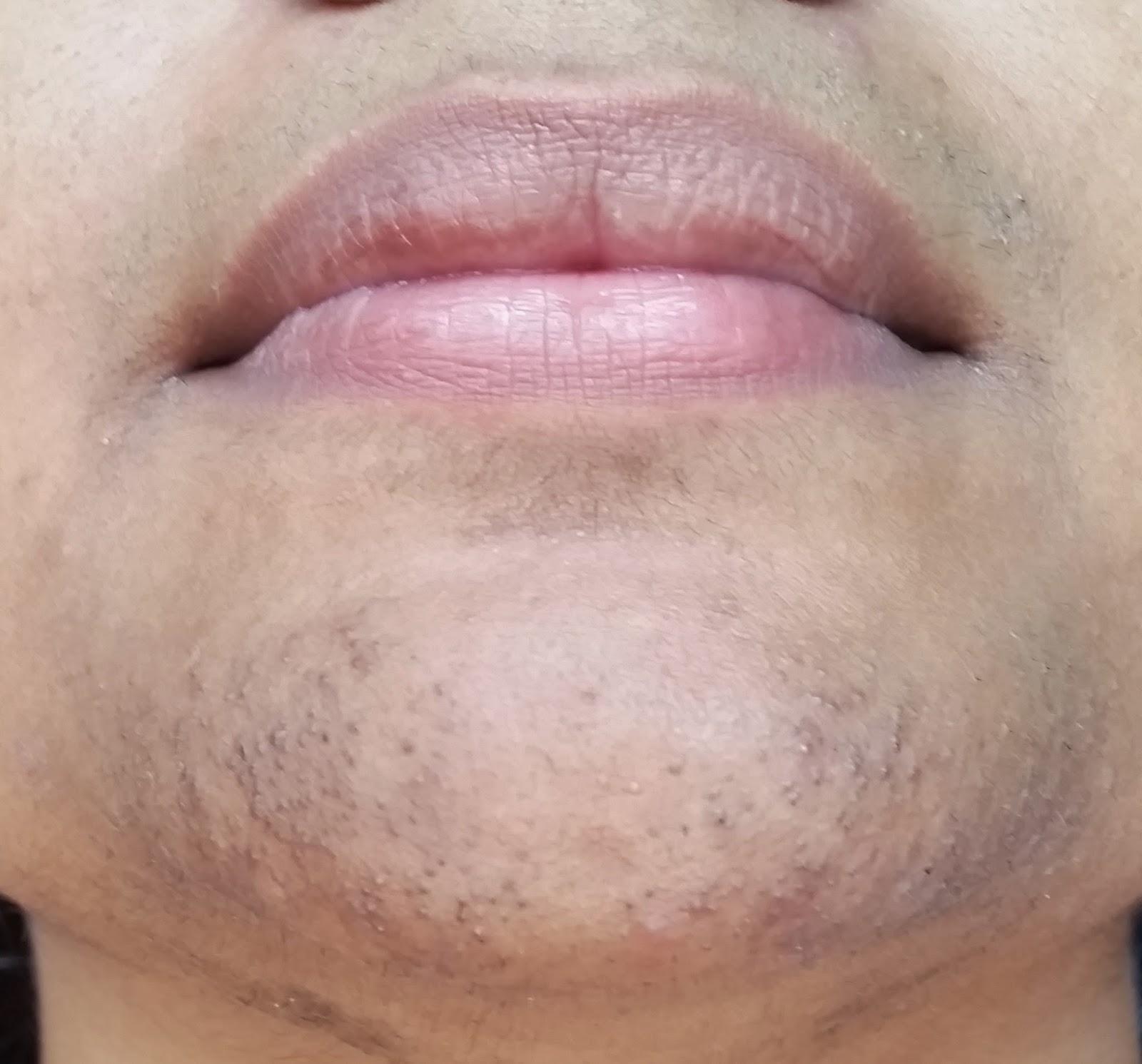 Pcos facial hair treatment