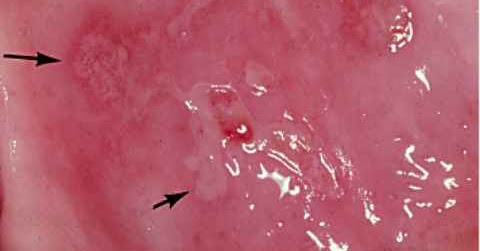 Blister de sang dans la bouche soins dentaires for Bouton interieur levre bouche