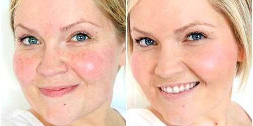 cubrir manchas maquillaje antes despues