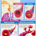 Homeopathy Treatment for Asthma