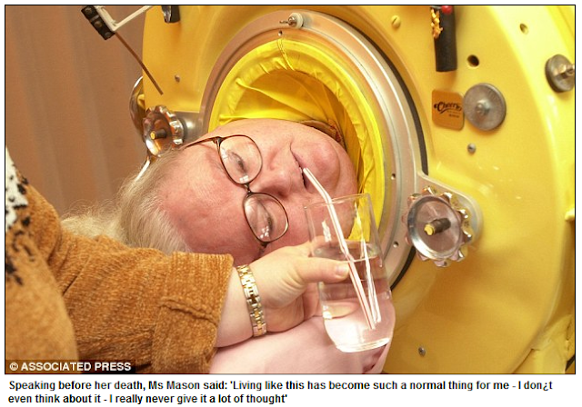 The Woman Who Lived in an Iron Lung For 61 Years