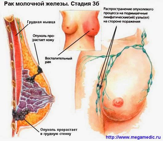Стадия рака 3б