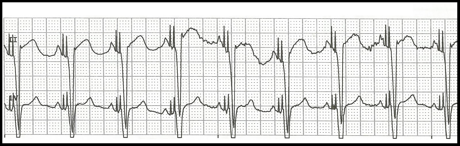 Float Nurse: EKG Rhythm Strip Quiz 144