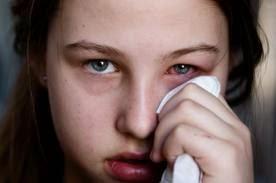 Obat Sakit Mata Yang Ampuh Dengan Penyembuhan Alami