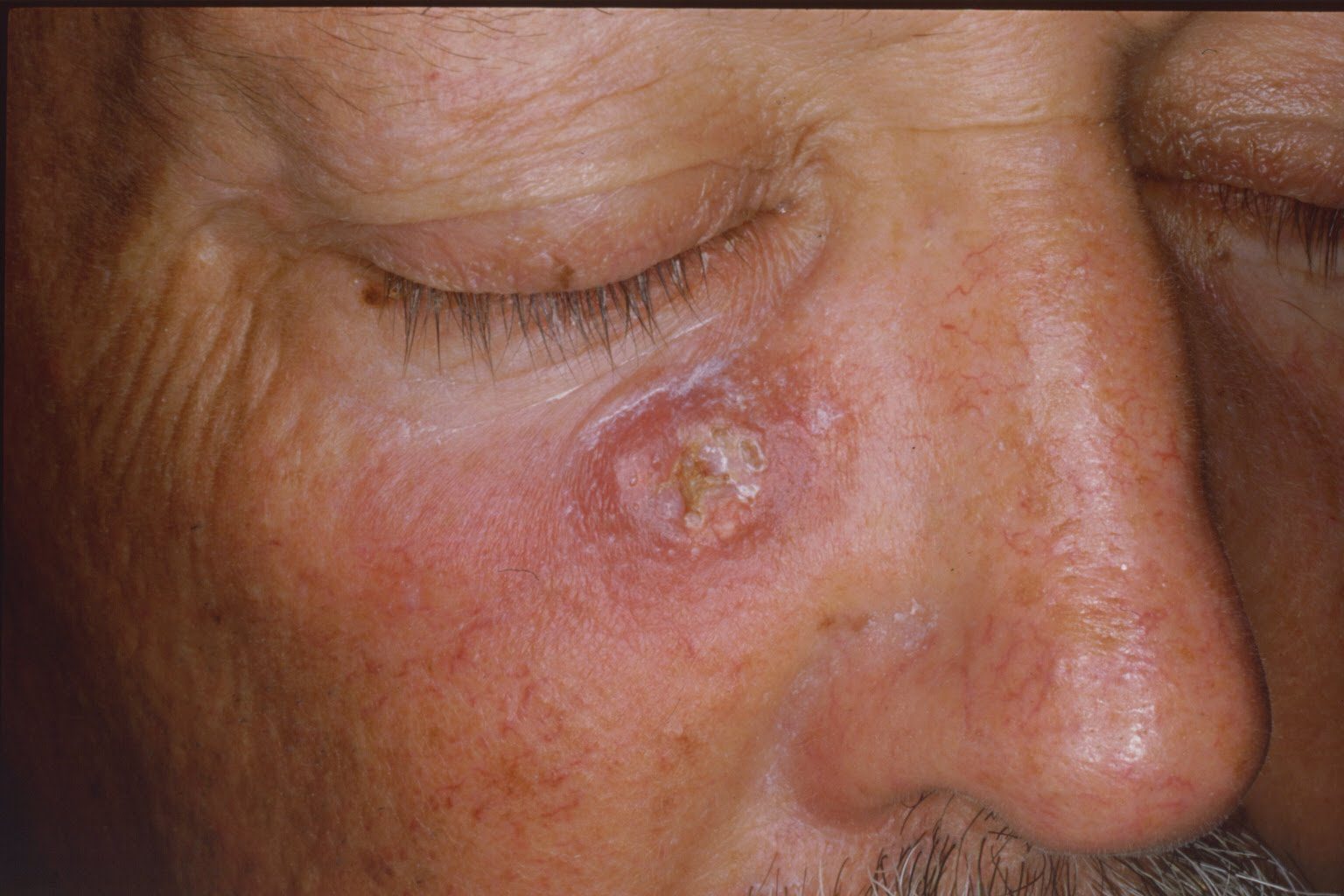 Actinic Keratoses : pre cancerous skin l esions