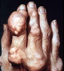 como bajar el acido urico del cuerpo menus para pacientes con acido urico fotos acido urico en los pies