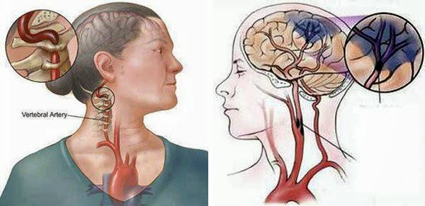 How to prevent cerebral vascular accident?