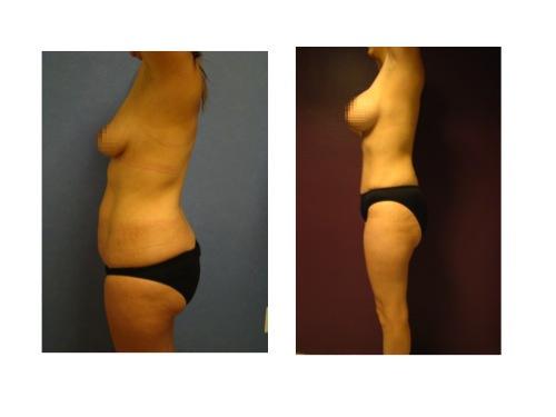 ejemplo de cirugia combinacion abdominoplastia con implantes de busto en Guadalajara