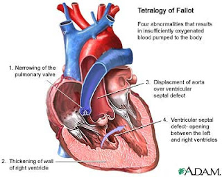 Paediatric cardiac surgery in India