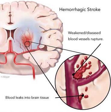 Stroke Akibat Pembuluh Darah Pecah
