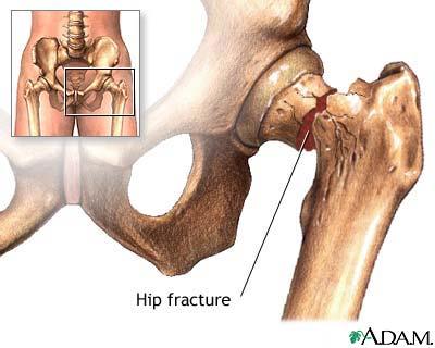 Hip Fracture: