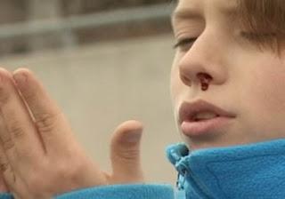 rinoplastia, rinoplastia lima , rinoplastia peru, cirugia de nariz