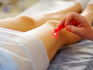 O laser é uma arma importante no tratamento das varizes e vasinhos