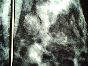 Εικόνες μαστολογικού ενδιαφέροντος 1