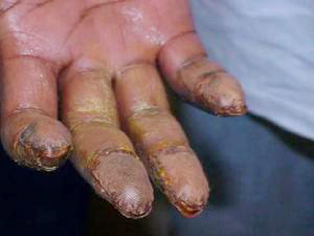Mala Suerte! Reapresan en Providence dominicano deportado por drogas que se alteró huellas dactilares