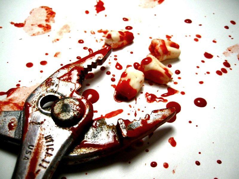 Сон вырвала сама себе зуб с кровью