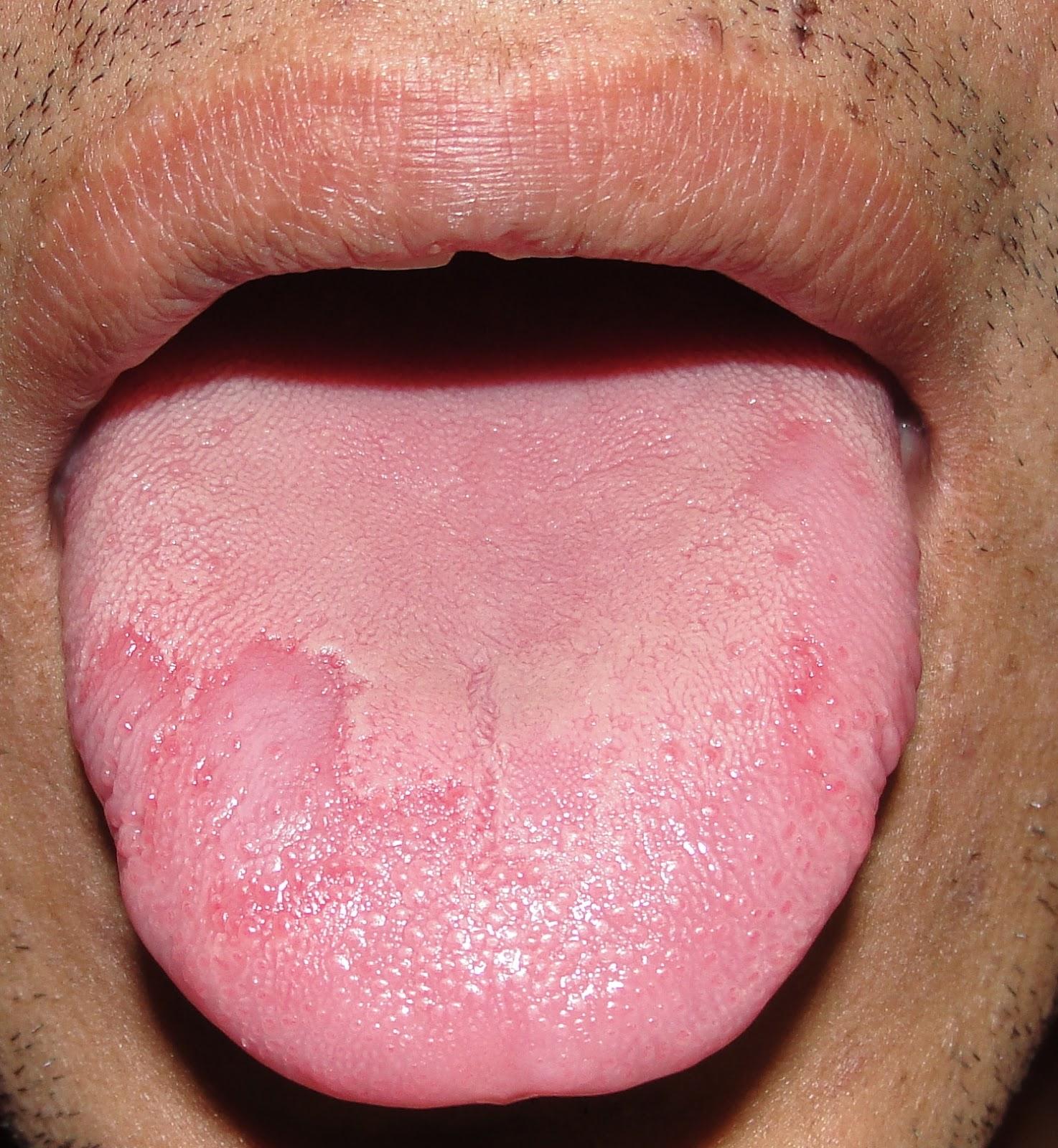 Oral Medicine and Radio-Diagnosis\