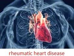 asuhan keperawatan rheumatic heart disease