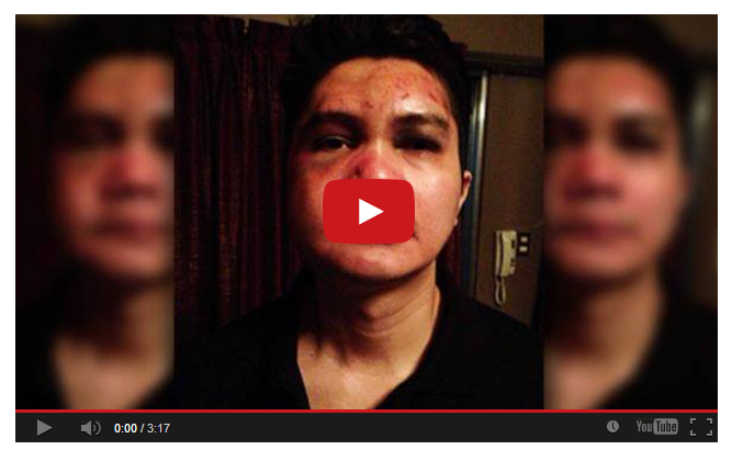 Fake Youtube on Vhong Navarro