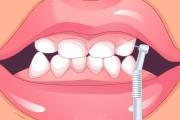 Diş Etleri Temizletme Oyunu