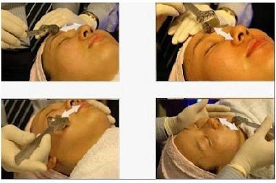 cara memuluskan kulit wajah berlubang