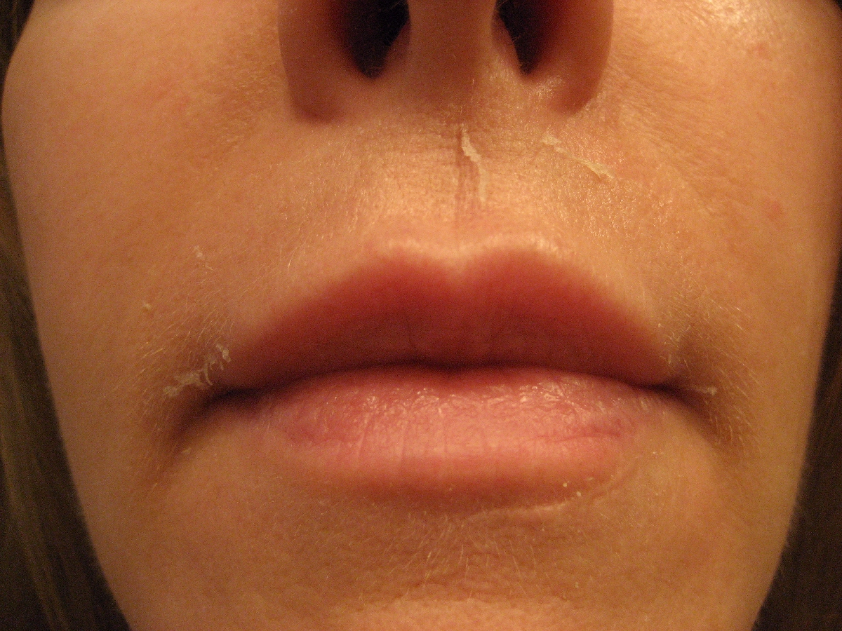 White Bumps on Lips, Fordyce Spots, Dots, Little, Small Sun spots on lips pictures