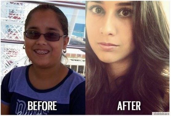 Gambar Sebelum Dan Selepas Hodoh Menjadi Cantik