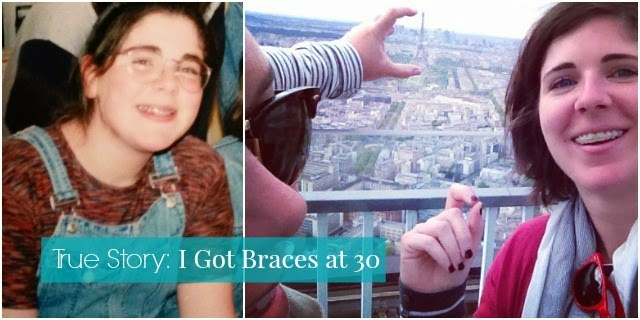 True story i got braces at 30 this is the story of my friend jess and her decision to get braces for a second time at age 30 solutioingenieria Choice Image