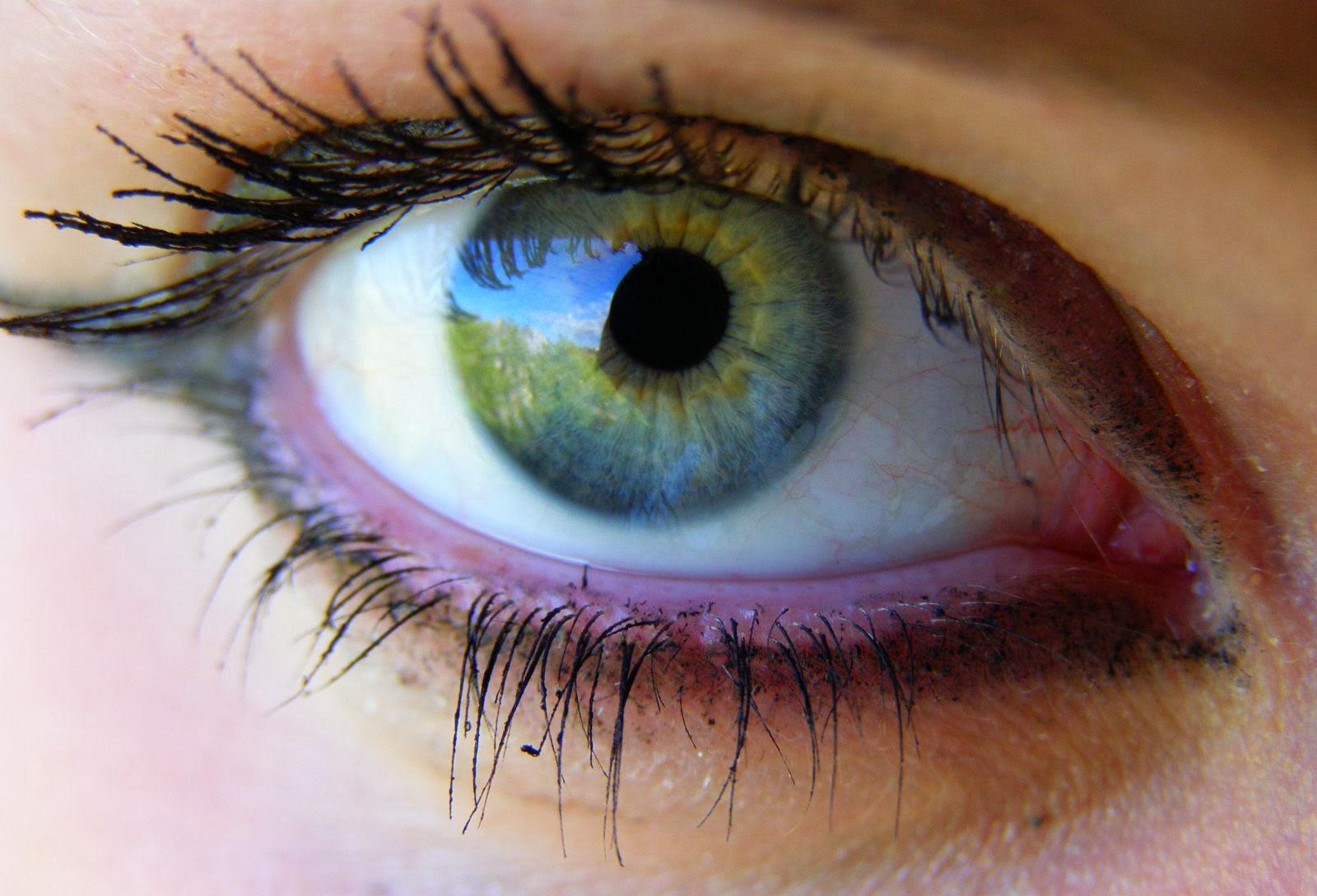 Gözler iltihaptan düşer mi