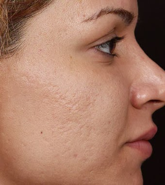 The best way to get rid of a pimple scar method 1 goodbye acne pimple scars essentially come in two forms early acne scars that are really just blemishes that later go away as well as longer lasting acne scars that ccuart Image collections
