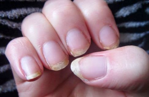 Urshadybff Do You Have Hair Loss Acne Or Brittle Nails