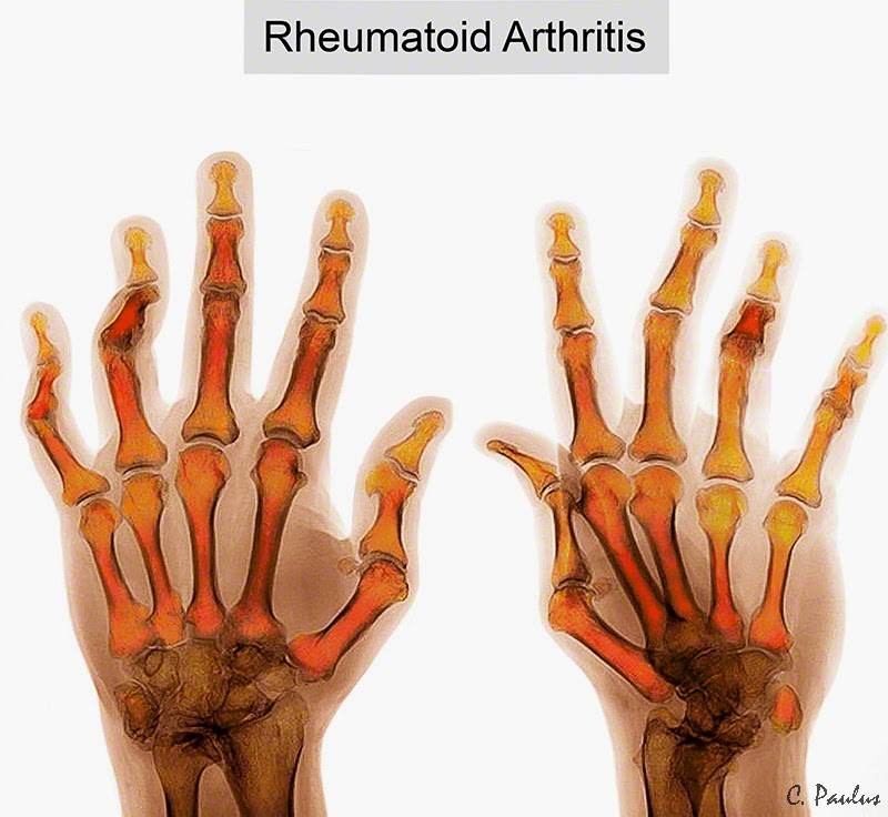 Color Hand X-Ray of the Rheumatoid Arthritis