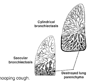sites-of-bronchiectasis