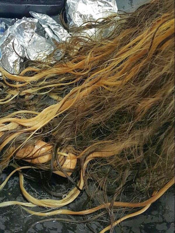 فتاة تفقد شعرها بسبب صبغات شعر مجهولة, صبغات مجهولة تفقد فتاة شعرها, فتاة تفقد شعرها,