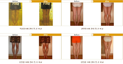 Natural Curved Legs Care