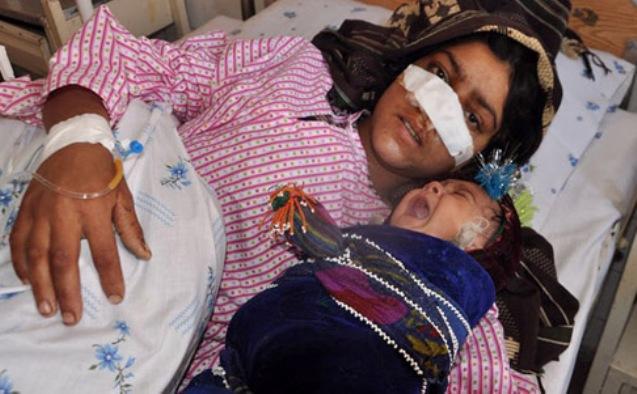 بالصور .. زوج يقطع أنف زوجته في أفغانستان !