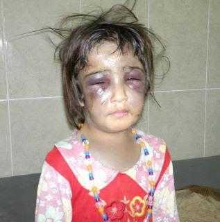 أنظروا ماذا فعلت زوجة الأب بهذه الطفلة البريئة!