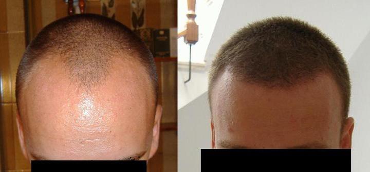 La máscara para los cabellos con arganovym por el aceite y la queratina