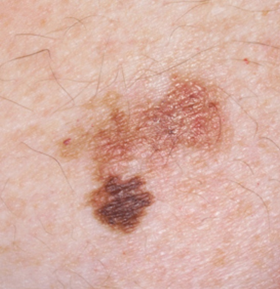 early stages of skin cancer