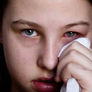 Cara Mudah Mengatasi Sakit Mata Sebelah Kanan dan Kiri