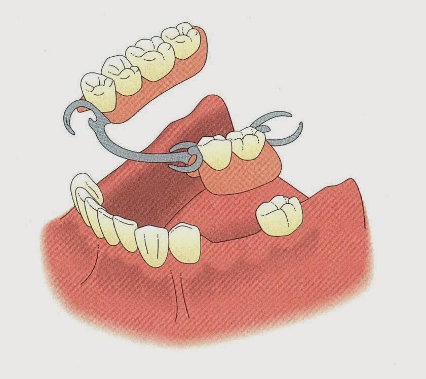 http://www.bestdentistbangalore.com/prosthodontics/