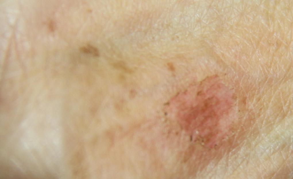 Affronti il pacco da posti di pigmentary e rossore