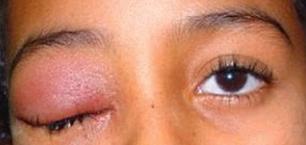 penyebab kelopak mata bengkak