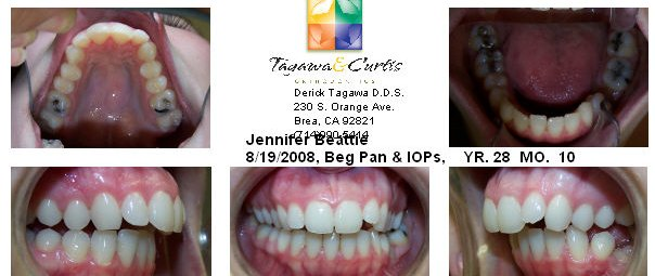 Outstanding With Braces Wired Shut Jaw Surgery Picture Collection ...