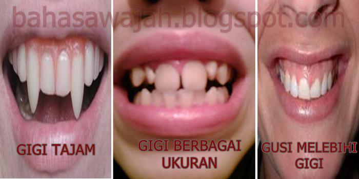 Kepribadian, karakter, watak, sifat, orang dari bentuk, model, tipe, gigi dan gusi, gigi besar, gigi renggang, gigi kecil, gusi lebih dari gigi, gigi tajam, gigi jarang, gigi sedang, 11 Kepribadian Orang dari Bentuk Gigi dan Gusi