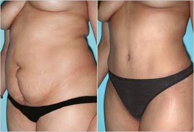 flacidez da pele e flacidez na barriga como perder a vergonha da flacidez no corpo abdominoplastia antes e depois