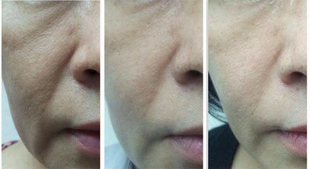 Hilang kedutan di wajah denga Collagen Powder Shaklee
