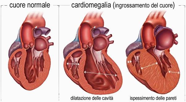 La cardiologia y la cirujia cardiaca: Cardiomegalia