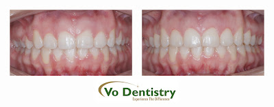Gum surgery, dental laser surgery, gingivectomy, lawrenceville, GA 30043
