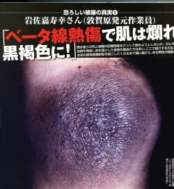敦賀原発元作業員の岩佐嘉寿幸氏の写真-ベータ線熱傷